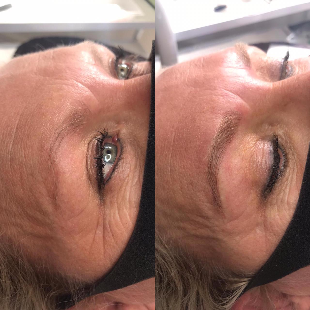 Before and After Microblading 2