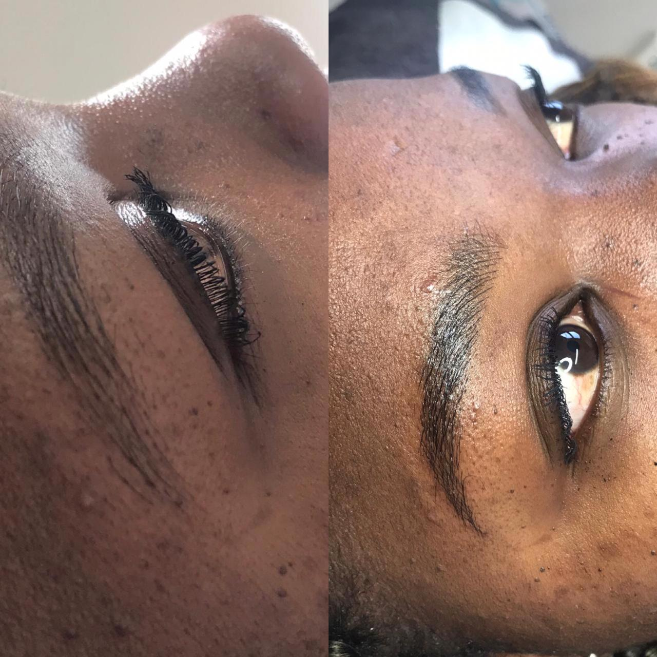 Before and After Microblading 1